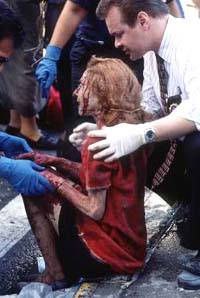 一名伤者正在接受治疗